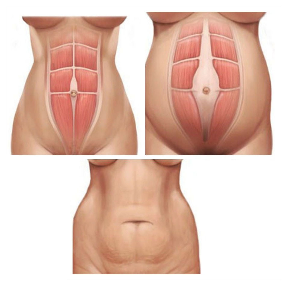 Can You Fix Diastasis Recti Years Later?